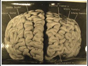 爱因斯坦的奇异大脑